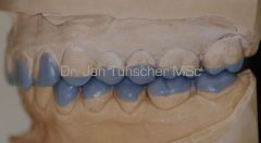 Funktionelles Wax-Up zur Therapieplanung links