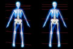 Skelettale Ebenen, schief und gerade