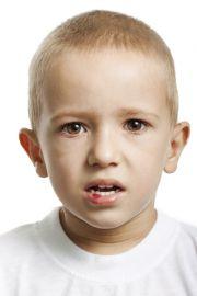 Trotz Unfall keine Schädigungen an den Zähnen erkennbar