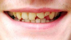 Vom Zahn ist etwas abgebrochen